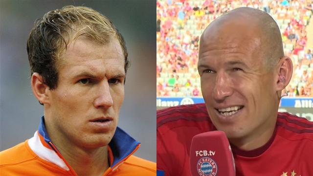 robben young old